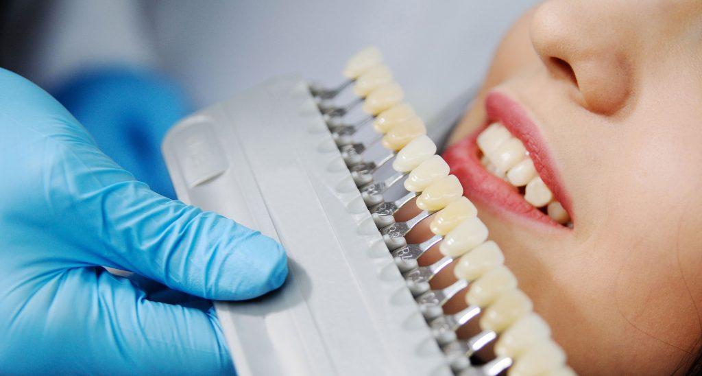 Mit einer Zahn-Farbskala die Zahnfarbe bestimmen Zahnarztpraxis Dr. Freund & Kollegen