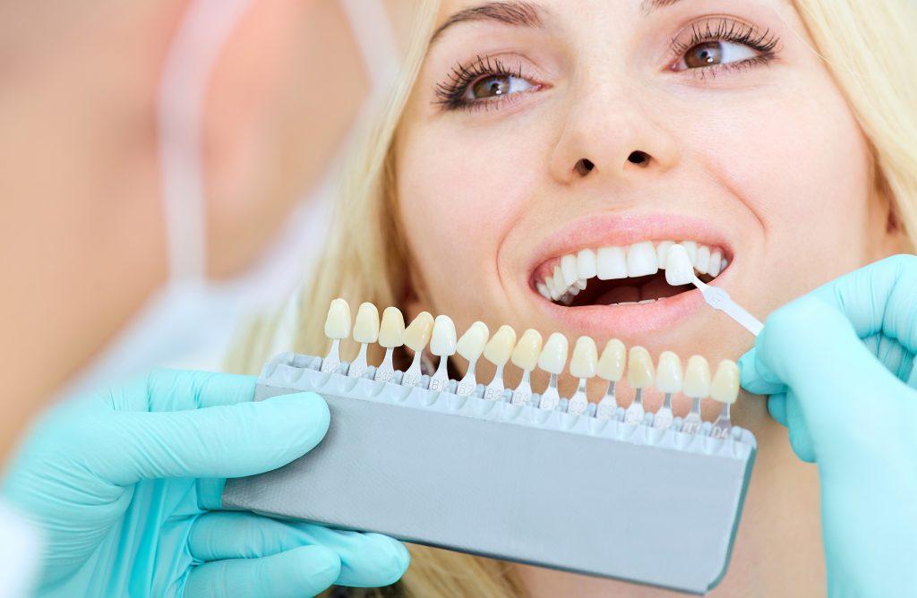 Zahnfarbskala zur Bestimmung der Zahnkeramik Keramikkrone Dr. Freund & Kollegen Berlin