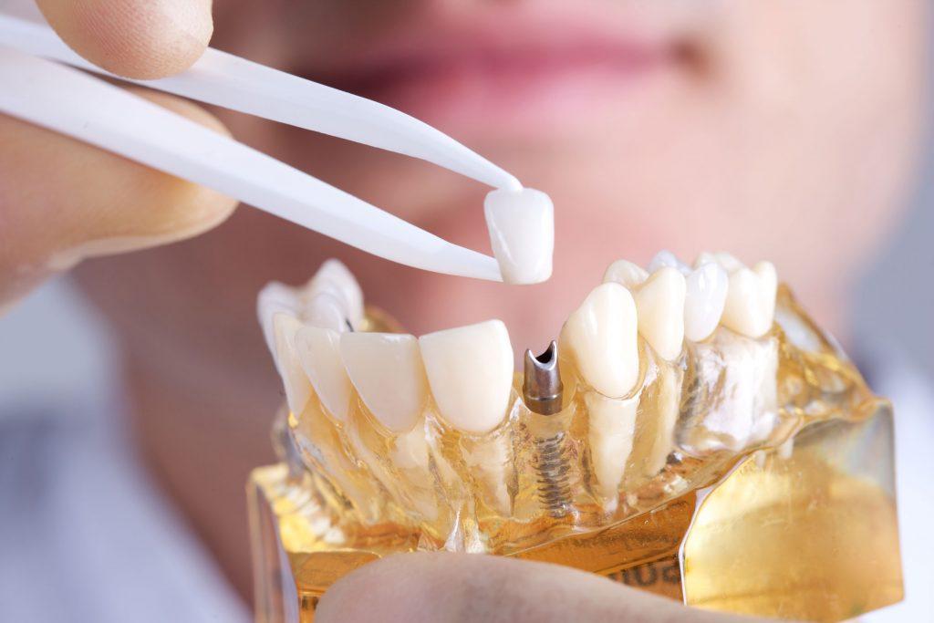 Implantat mit einer Keramik-Krone als Modell Implantologie Dr. Freund & Kollegen Berlin