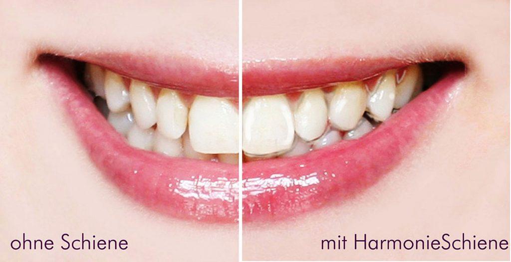 Unauffällige Zahn-Korrekturschiene für Erwachsene von Orthos Dr. Freund & Kollegen Berlin