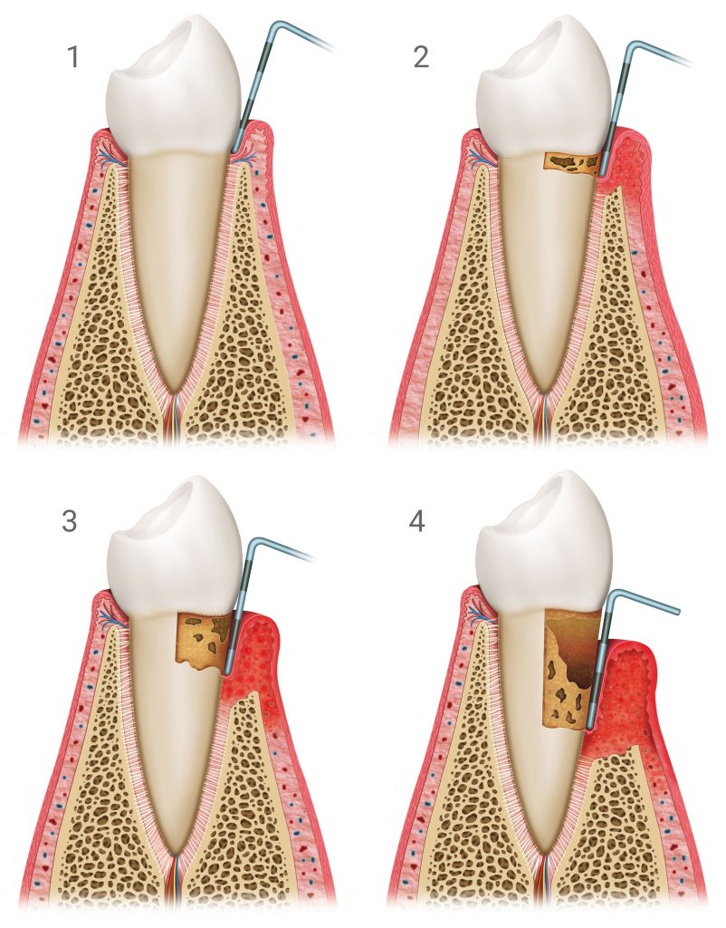 Grafik Verlauf einer unbehandelten Parodontitis Zahnarztpraxis Dr. Freund & Kollegen Berlin